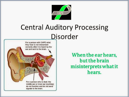 central auditory processing disorder (CAPD) Diagram